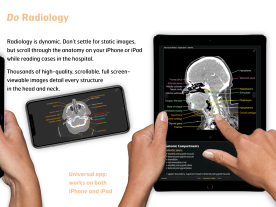 Radiology - Head&Neck Anatomy screenshot 7