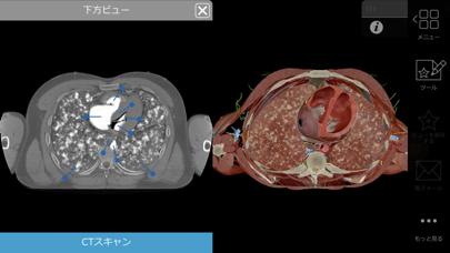 生理学と病理学のおすすめ画像9