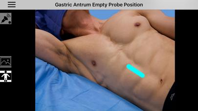 AnSo Anaesthesia Sonoanatomy screenshot three
