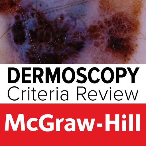 Dermoscopy Criteria Review