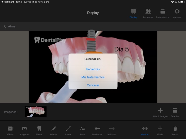 Dentool screenshot-7