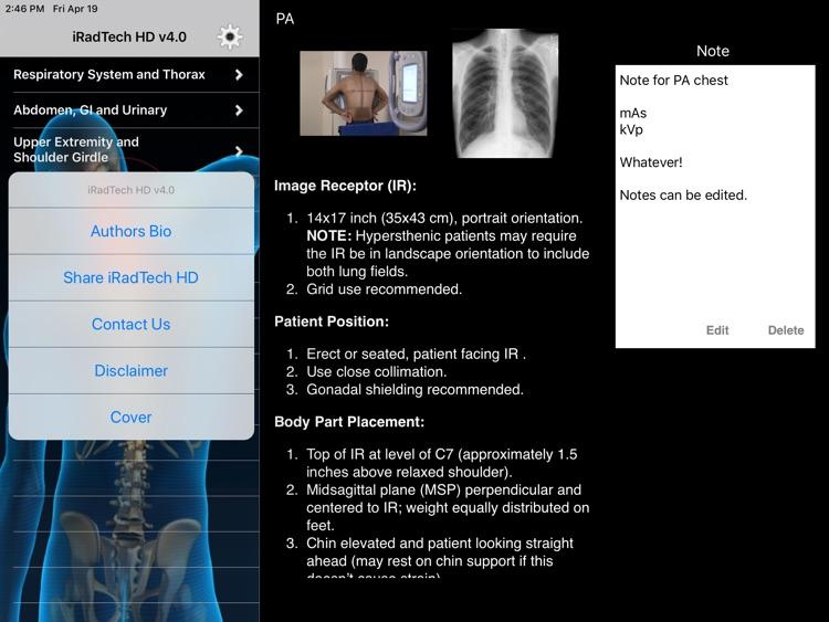 iRadTech HD screenshot-5