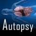 Autopsy