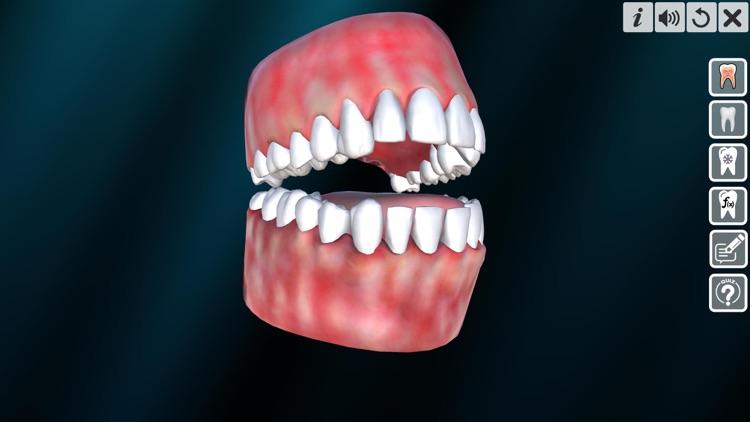 Incredible Human Teeth