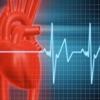 EKG Clinical