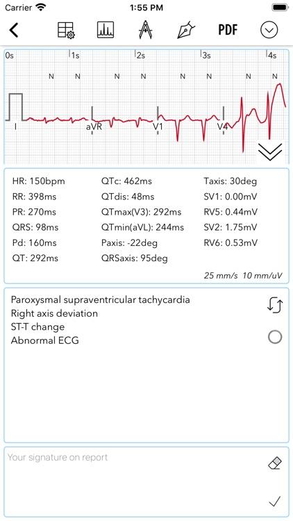 ECG / EKG screenshot-4