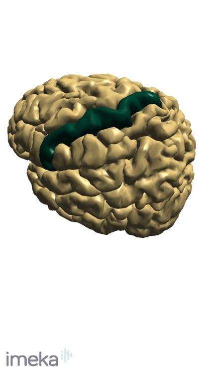 NeuroNavigator screenshot-5