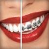 歯列矯正装置を付けよう (Brace Face)