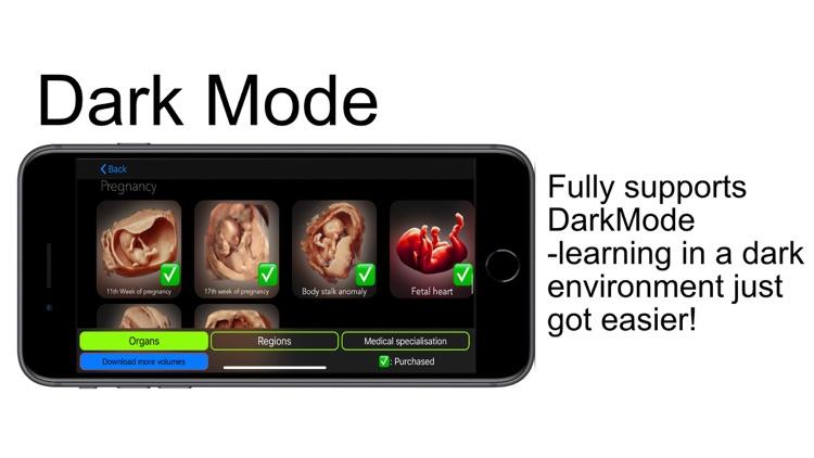 Scanbooster Ultrasound Sim screenshot-8