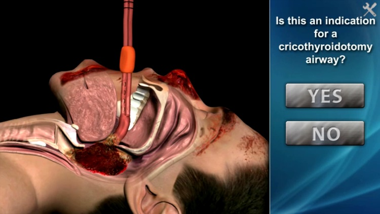 Medrills - Cricothyroidotomy screenshot-3