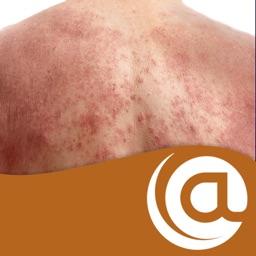 Atopic Dermatitis @PoC