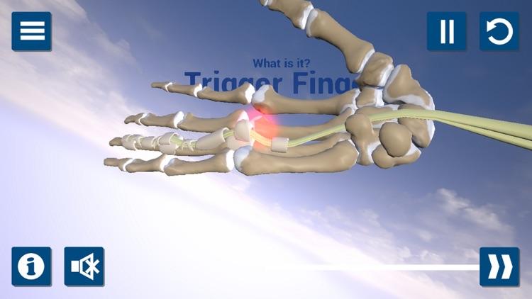 Trigger Finger 3D