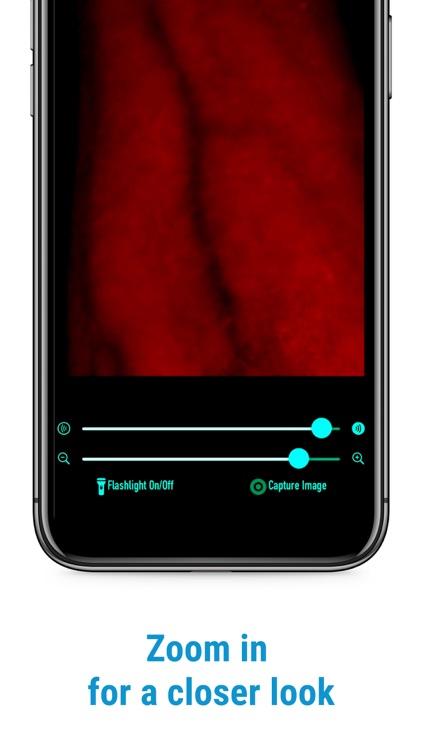 VeinScanner screenshot-3