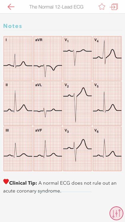 ECG Notes: Quick look-up ref. screenshot-4