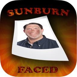 SunburnFaced - The Fake Sun Burn Photo FX Booth