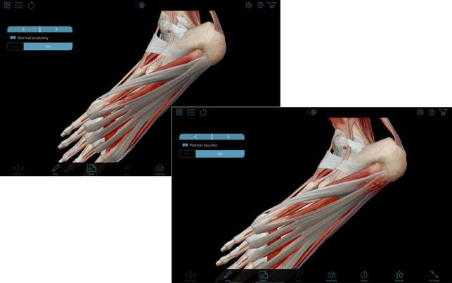 Muscle Premium - Human Anatomy, Kinesiology, Bones on the Mac App Store
