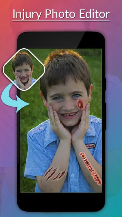 Injury Photo Editor -Injury Camera stickers screenshot-3
