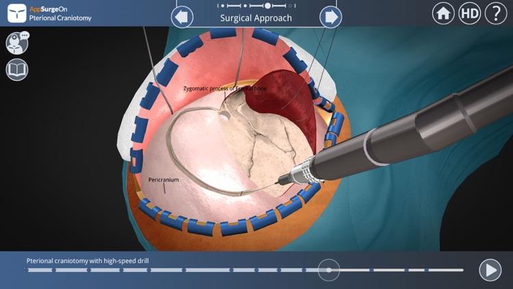 Pterional Craniotomy screenshot-4