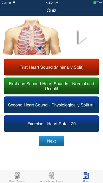 voice words and sound in heart of In other words, an s3 heart sound indicates increased volume of blood within the ventricle an s3 heart sound is best heard with the bell-side of the stethoscope (used for lower frequency sounds) a left-sided s3 is best heard in the left lateral decubitus position and at the apex of the heart, which is normally located in the 5th left.