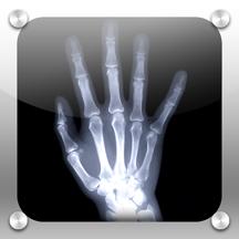 X-Ray (X射线照相机)