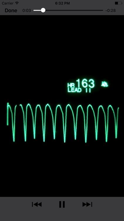 EKG Clinical screenshot-4
