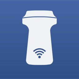 SONON Ultrasound App