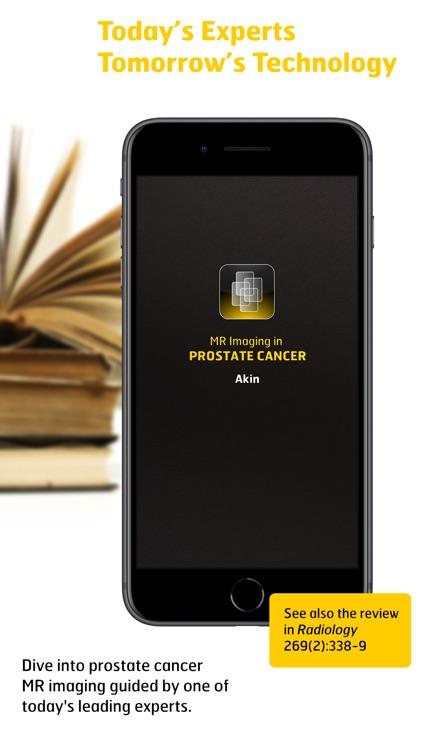 MR Imaging in Prostate Cancer