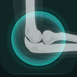 Musculoskeletal Pro Consult
