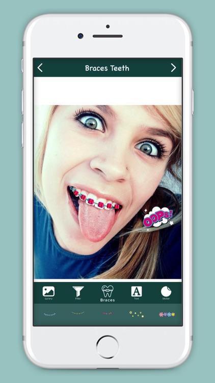 Make Me : Braces Teeth screenshot-3