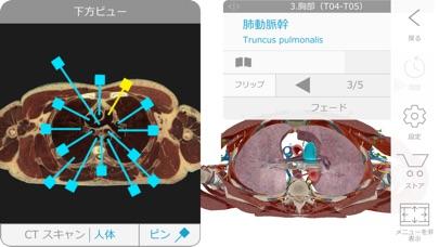 ヒューマン・アナトミー・アトラス2018エ... screenshot1