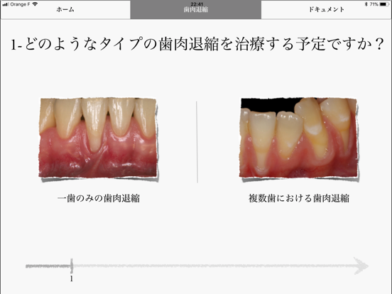 iMuco Récessions gingivalesのおすすめ画像1