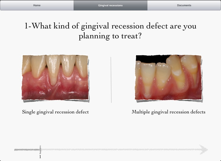 iMuco Gingival recessions screenshot-0