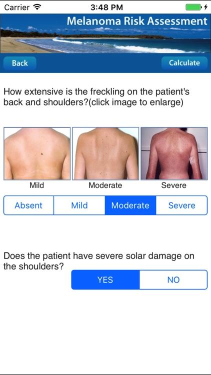 Melanoma Risk Assessment Tool screenshot-3