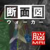 断面図ウォーカー脳MRI-Ryo Matsuda