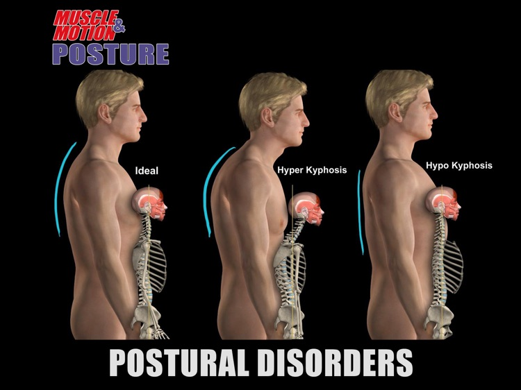 Muscle and Motion - Posture