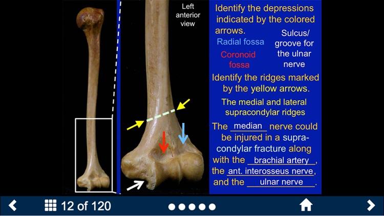 MSK Anatomy - SecondLook screenshot-3