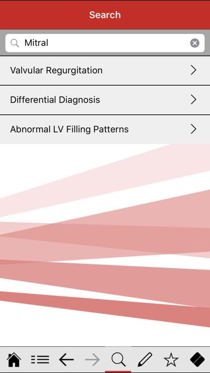 Echocardiography pocketcards