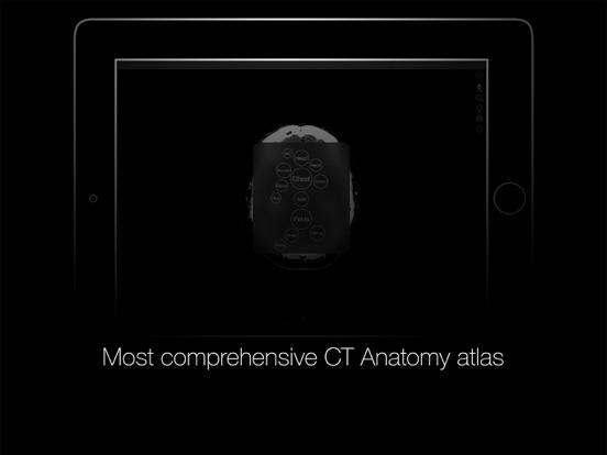 CT Anatomy screenshot