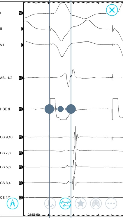 Cardiac Arrhythmia Challenge screenshot-5