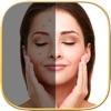 にきびをすっきり - Pimple Eraser - iPhoneアプリ