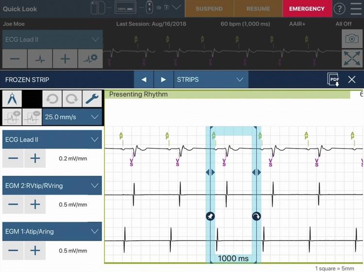 CareLink SmartSync™ US screenshot-4
