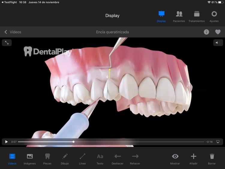 Dentool