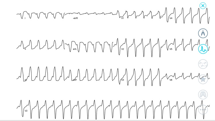 Cardiac Arrhythmia Challenge screenshot-3