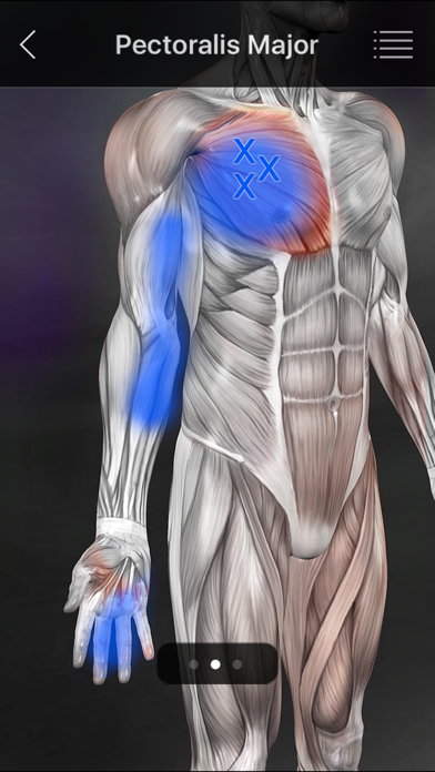 Muscle Trigger Points screenshot four