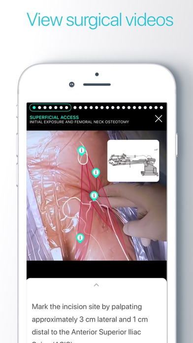 download Touch Surgery: surgical videos apps 2