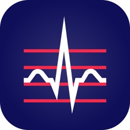 Change Healthcare ECG Mobile