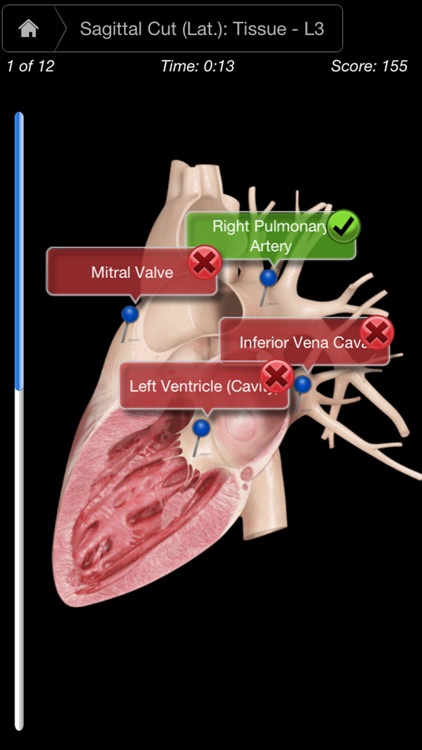 Heart Pro III - iPhone screenshot-4