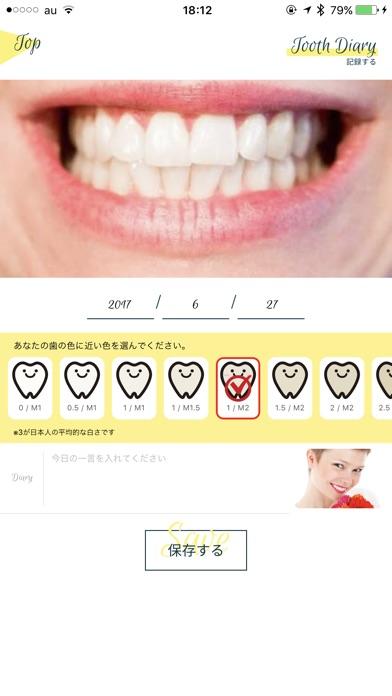 Smile Cosmetique  白い歯日記のスクリーンショット4