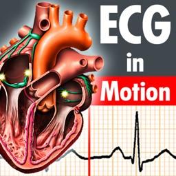ECGinMotion HD