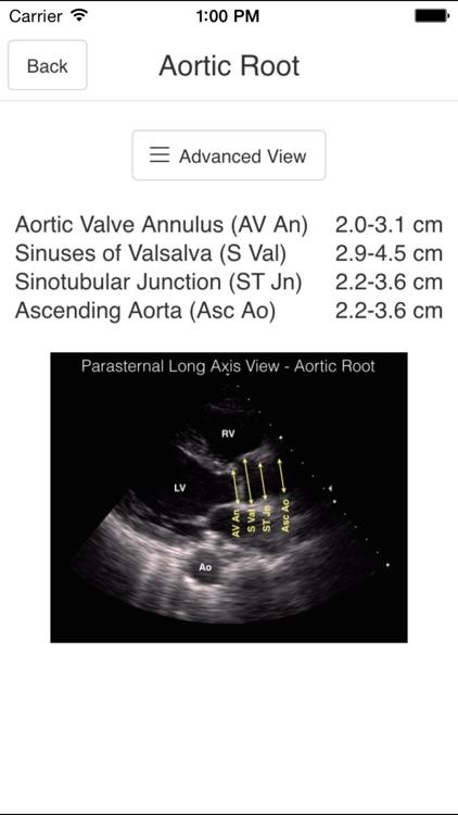 Pocket Emergency Ultrasound screenshot-4